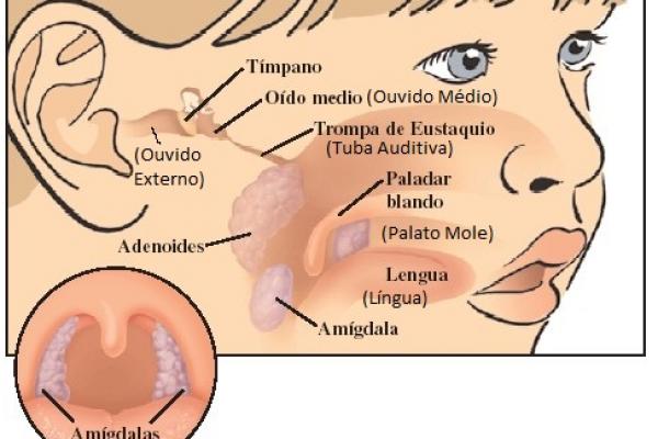 amigdalas.png